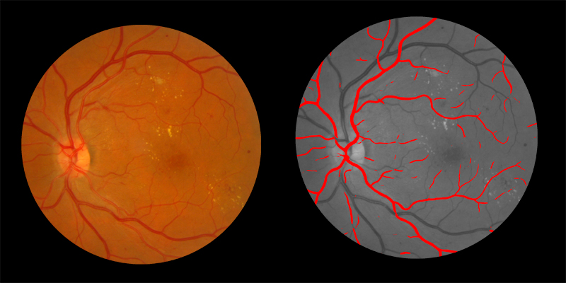 Two photos of human eye scan where arteries identified by AIRA are shown in red