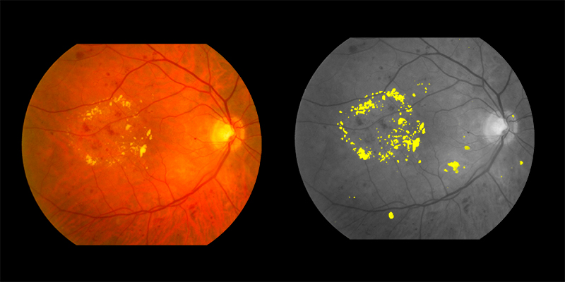 Two photos of human eye scan where exudates identified by AIRA are shown in yellow