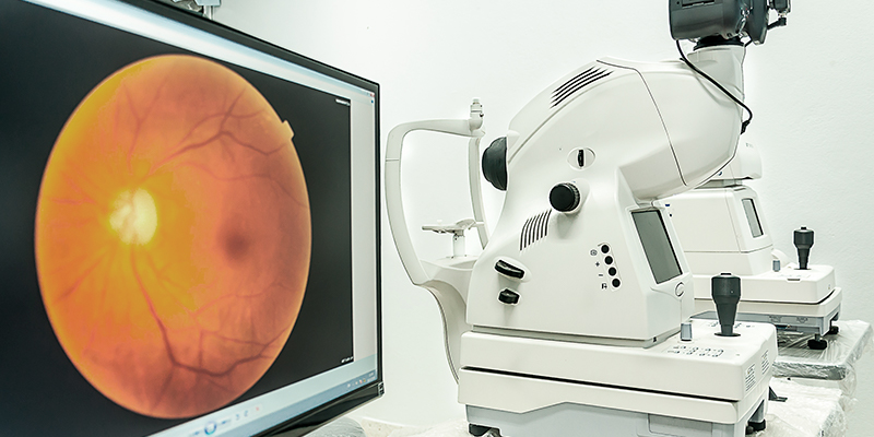The device for scanning retina shows the picture of an eye on the screen