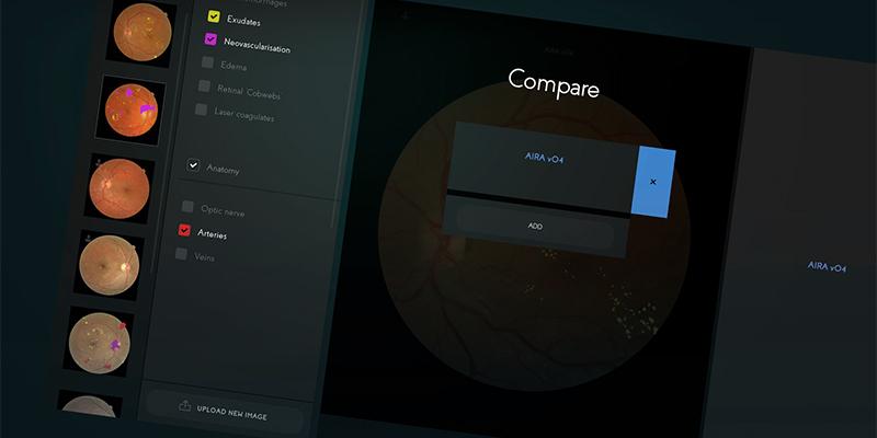 AIRA application interface screenshot